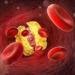 血中脂質の濃度が基準値から外れている状態