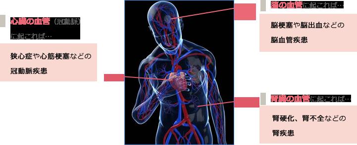 動脈硬化による合併症